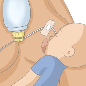 tétée DAL allaitement aide soutien lactation libres enfants du tarn prêt gratuit